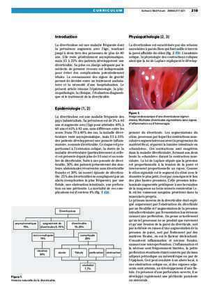 Anatomie chirurgicale du thorax : Diverticulite aiguë diagnostic et traitement