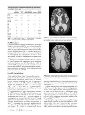 Brain and Spinal MR Imaging Findings in REVIEW ARTICLE